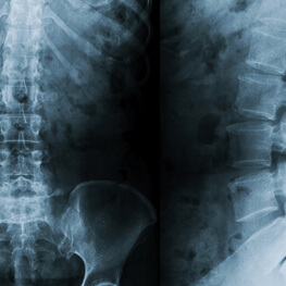 Minimally Invasive Spinal Surgery By The Best Neurosurgeons & Spinal Surgeons Sydney